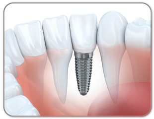 tooth implant screwed in